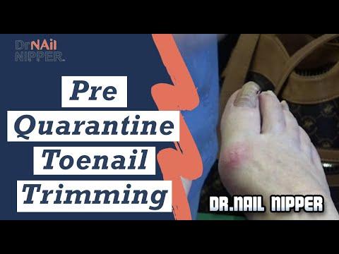 Pre-Quarantine Toenail Trimming - Dr Nail Nipper (2020) 1