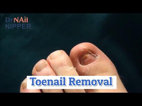 Toenail Removal, Sports Injury [Throwback Thursday] 1