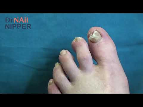 Toenails Only Another Runner Could Love  (2020) 1