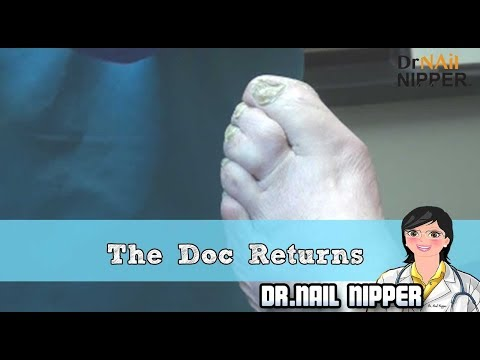 The Doc Returns and Dr Nail Nipper has a Resident 1