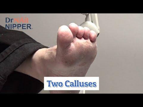 2 Calluses and Dr Nail Nipper's Resident [Callus Tuesday] (2020) 1