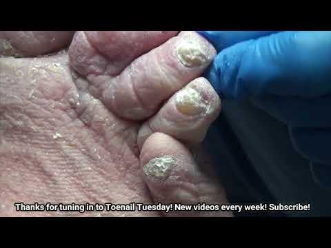 Nail Fungus with Diabetes and Lymphedema - Dr Nail Nipper 1