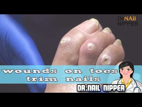 Wounds on Toes and Trim Nails 1