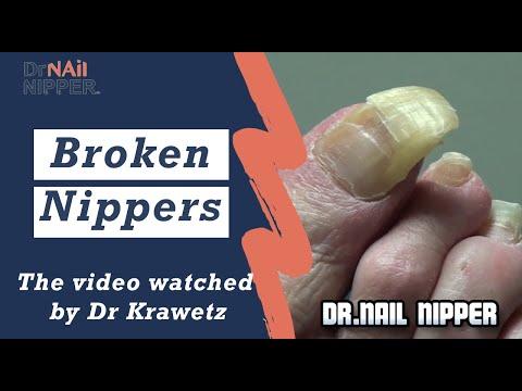 Broken Nippers. How does Dr Nail Nipper trim toenails? 1