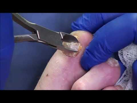 Dr. Nail Nipper's Coming to Roku!  Free TV Channel 1
