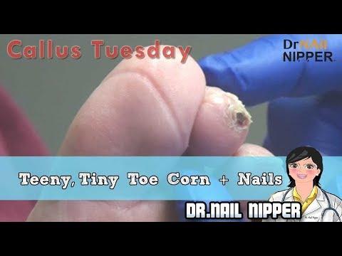 Teeny, Tiny Toe Corn plus Nails #39 - Callus Tuesday 1