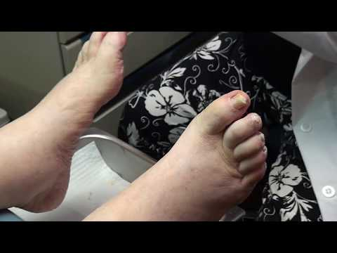 trimming thick toenails and calluses 1