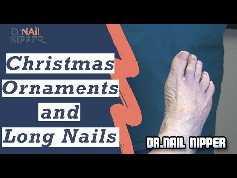 Long Toenails, Ornaments with Dr Nail Nipper (2019) 1