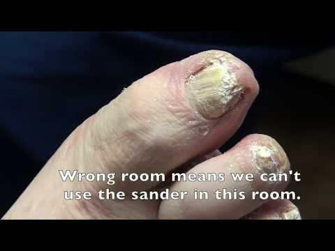 Thickest Nails on the Net - Dr. Nail Nipper 1