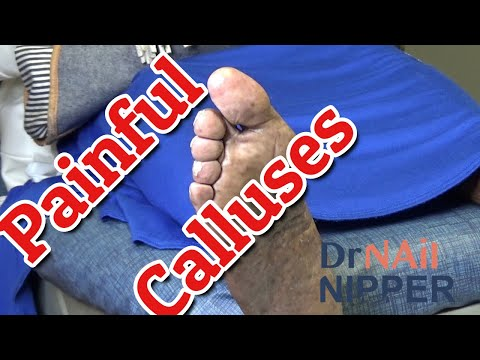 Painful Calluses [Callus Tuesday] (2020) 1