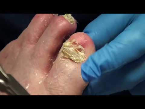 Toenail Tuesday with Dr. Nail Nipper!  All Star Doctors! 1