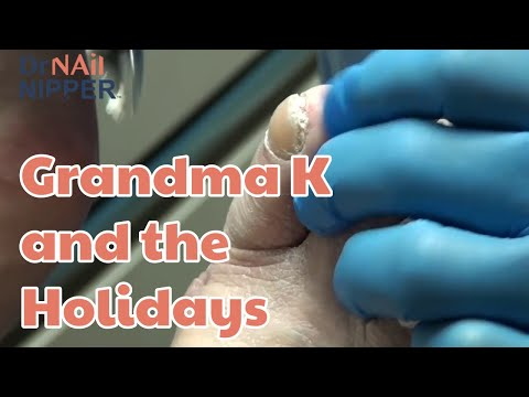 Holiday Time, Trimming Toenails  and Grandma K [Throwback Wednesday] 1
