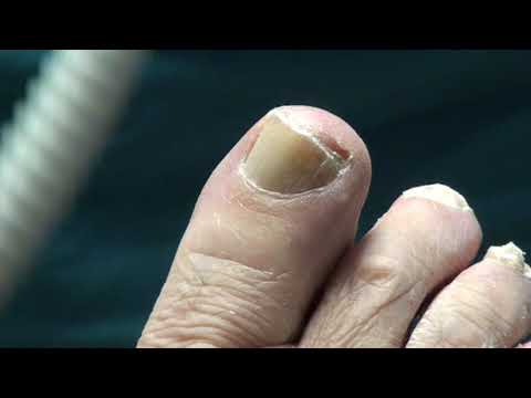 What does a Diabetic Toenail Look Like? Russian and Trimming Toenails on Patient in Podiatry office 1