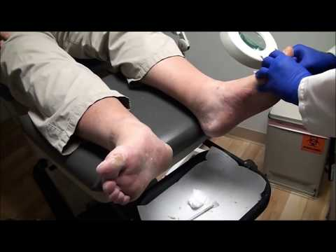 Dr. Nail Nipper's Summer of Nail Care - Fancy Feet 1
