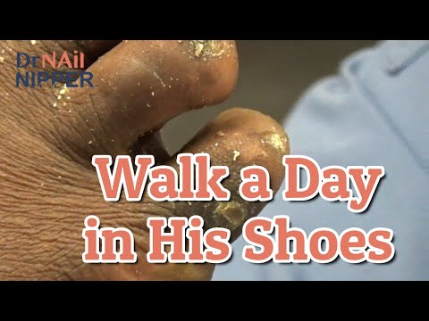 Hard to Walk a Day in His Shoes.  Dr Nail Nipper [Callus Tuesday] (2020) 1