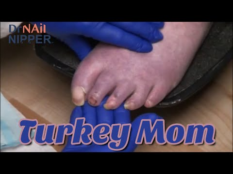 Happy Thanksgiving 2020 - Turkey Mom has Trimming Toenails with Multiple Sclerosis 1