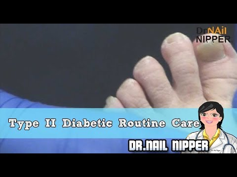 Are You a Type 2 Diabetic?  Dr Nail Nipper Explains Routine Foot and Toenail Care 1