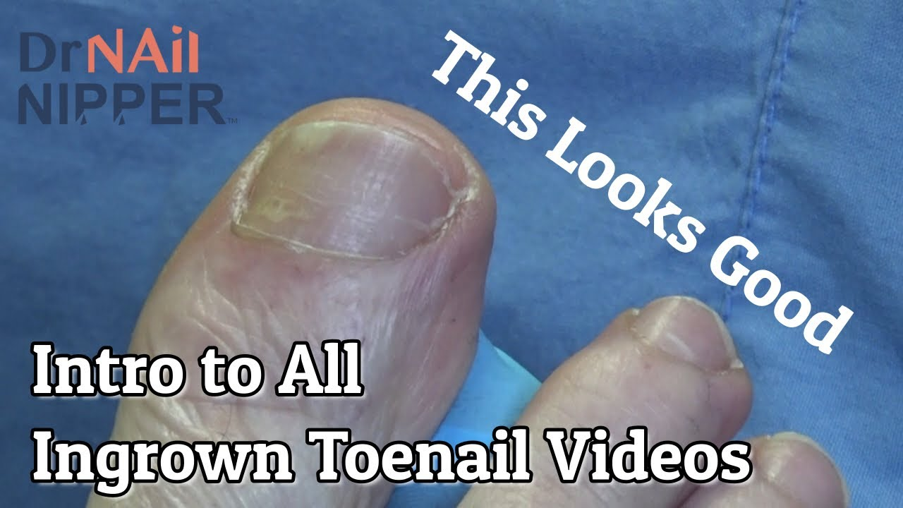 Intro to all Ingrown Toenails Video (2020) - Watch the video for more information 1