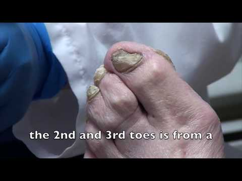 No Nail Nipper?  The Truth is the Sander.  The Doc Part #1 1
