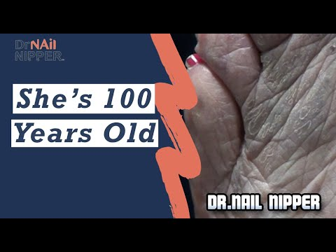 She's 100 Years Old!!! Can you believe that after hearing her? Dr Nail Nipper is trimming  toenails 1