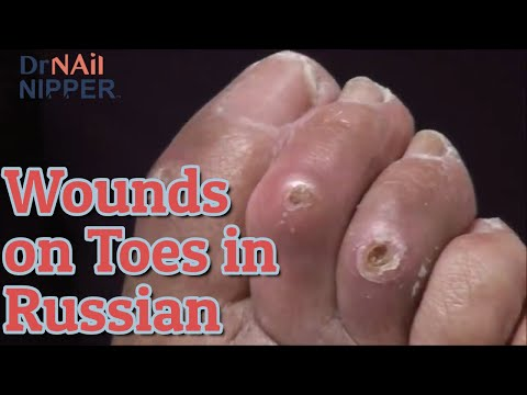 Russian Spoken Here?  Open Wounds on Toes and Toenails [Throwback Wednesday] 1