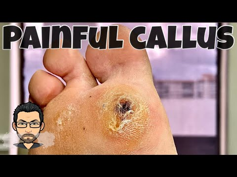 CALLUS REMOVAL FROM FEET 1