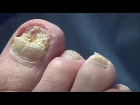 Worst Nails after 20 Marathons - Dr. Nail Nipper 1