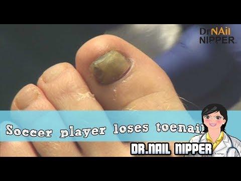 Soccer Player Loses His Big Toenail - Sports Foot Injury 1