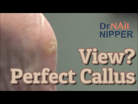 The Perfect Callus View?  With a Twist [Throwback Thursday] 1