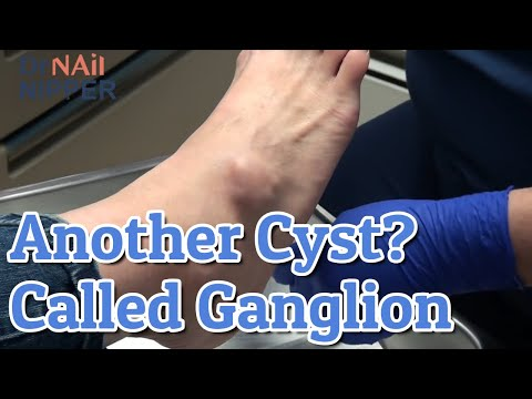 What is a Ganglion Cyst?  Is it Cyst week?  Dr Nail Nipper [Throwback Wednesday] 1
