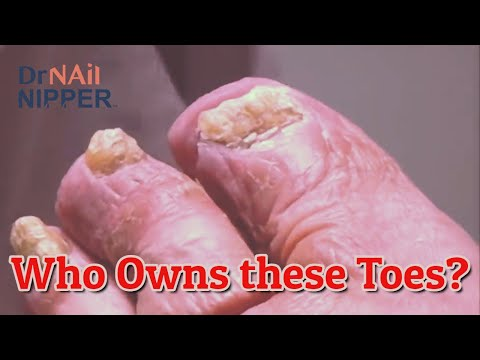 Are your toenails super thick?  Dr Nail Nipper Patient  [Throwback Wednesday] 1