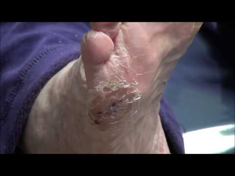 Foot Problems with Dr. Nail Nipper - Best of Judy Sperling 1