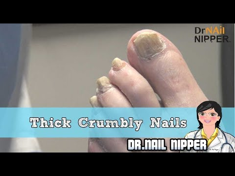 Thick Crumbly Toenails 1