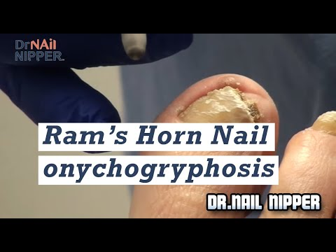 Ram's Horn Nail (onychogryphosis) trimming in podiatry office 1