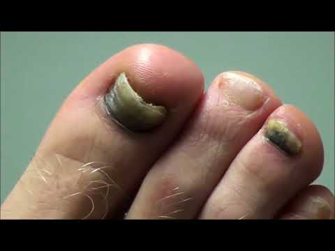 Dr. Nail Nipper vs Soccer Nails!  Nail Clipping! 1