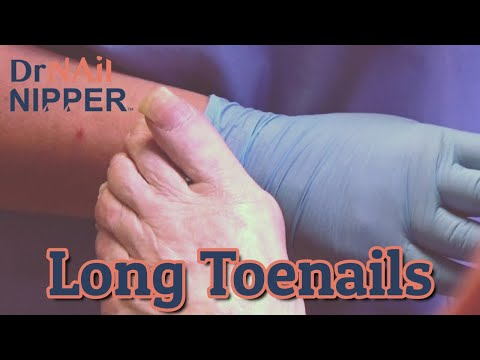 How long toenails are cut?  By Dr Nail Nipper (2020) 1
