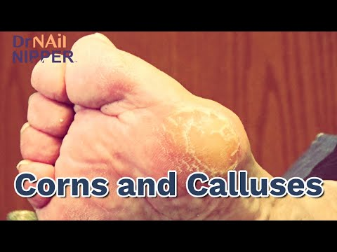 Can pressure create Corns and Calluses?  Watch until the End, Dr Nail Nipper [Callus Tuesday] (2020) 1