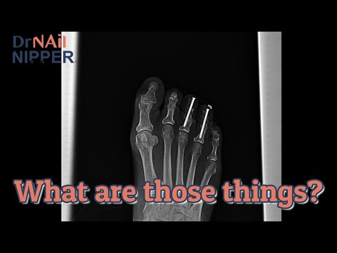What are foot screws?  Take a look with Dr Nail Nipper [Callus Tuesday] (2021) 1